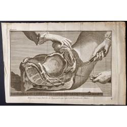 1781 - Chirurgie de l'abdomen