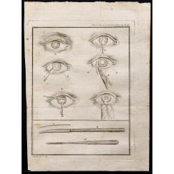 1787 - Chirurgie oculaire