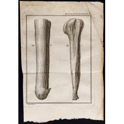 1787 - Moignon d'amputation
