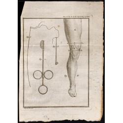 1787 - Instruments chirurgie