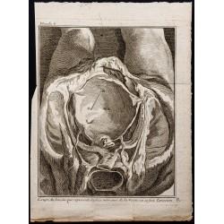 1781 - Opération de la vessie