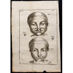 1781 - Becs de lièvre