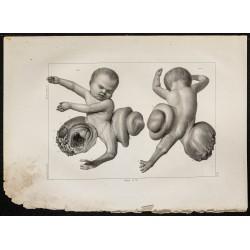 1864 - Anomalie d'un foetus