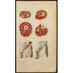 1846 - Coupe du bras,...