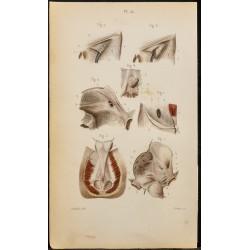 1846 - Aponévroses de...
