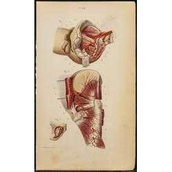 1846 - Artère iliaque,...